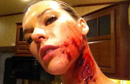 Resident Evil Alice ferida